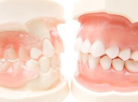 歯周病とインプラントの関連性
